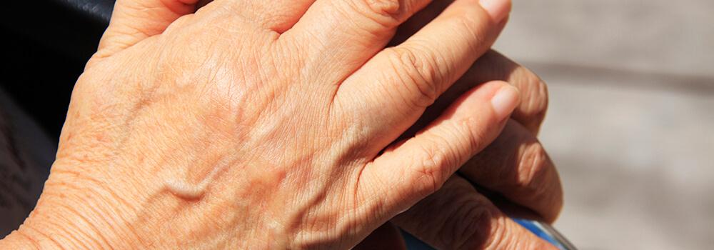 手・指・四肢